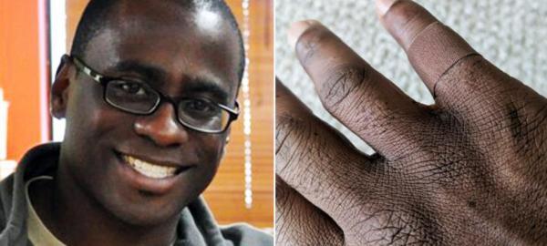 Un hombre se emociona por utilizar una venda adhesiva del tono de su piel